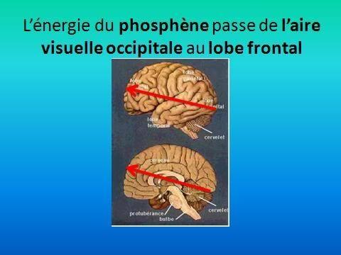L'énergie du phosphène arrive dans la zone frontale du cerveau
