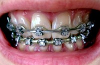 orthodontie : approche différente
