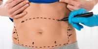 liposuccion-abdominoplastie