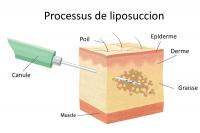 processus-liposuccion